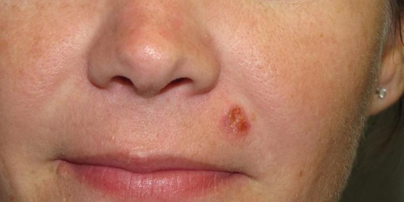 Tot ce trebuie sa stii despre cancerul de piele si preventia sa | Blog | Medihelp