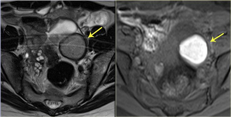 cancer endometrial cyst