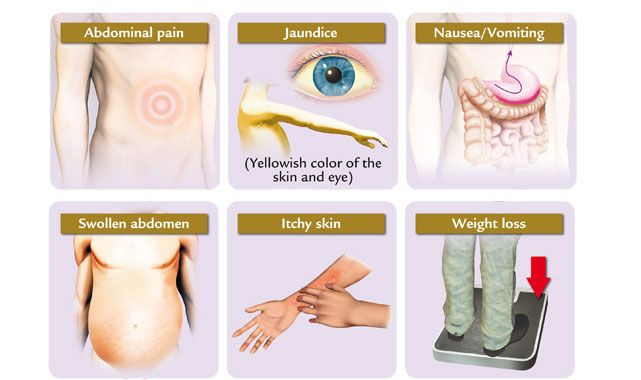 cancer jaundice abdominal pain