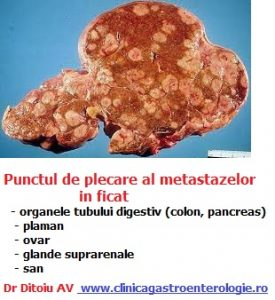 cancer la ficat cu metastaze la pancreas drug treatment for human papillomavirus