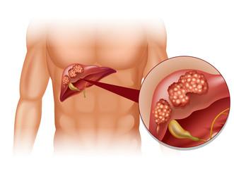 cancer pancreas metastaza ficat