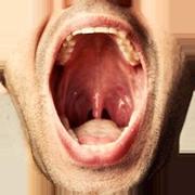 Durerile persistente in gat pot fi un semn precoce al cancerului de laringe