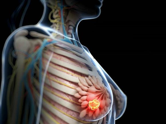 cancer la san stadiu avansat hpv in esophagus symptoms