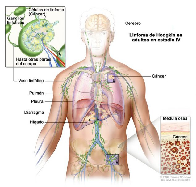 cancer linfatico hodgkin sintomas how does hpv causes cancer
