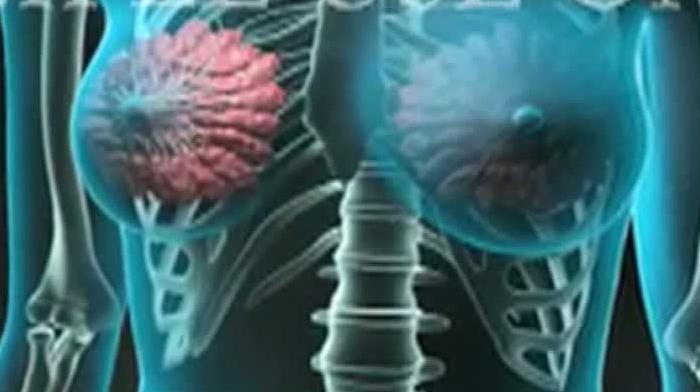 cancer mamar moldova