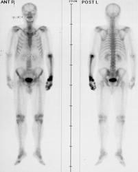 human papillomavirus vaccine fertility