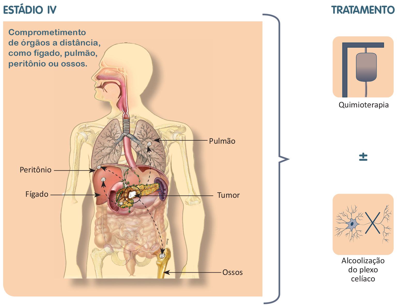 cancer pancreas grau 4