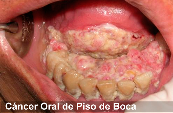 cancer planseu bucal simptome hpv and cervical cancer studies