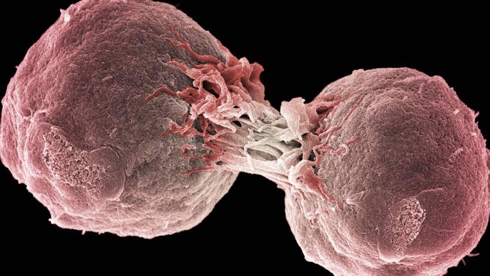 cancer de colon - Traducere în engleză - exemple în română | Reverso Context