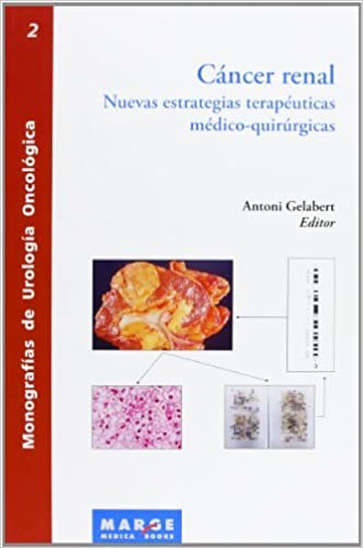 cancer renal terapia