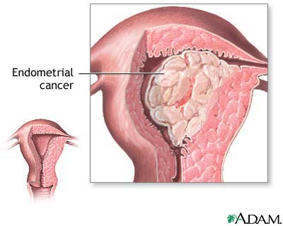 cancer uterin endometru
