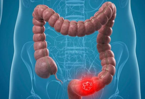 papillomavirus uvula cancer gastric cauze