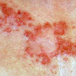 cancerul la piele