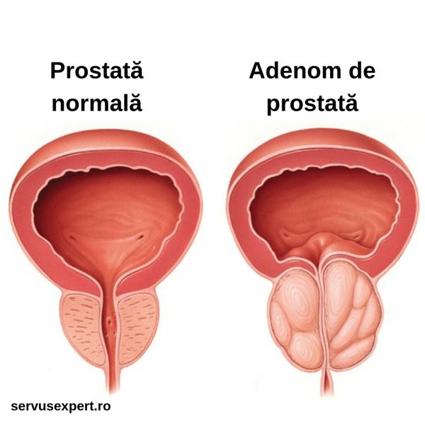 cancerul de prostata evolutie cancer limfatic hodgkin simptome