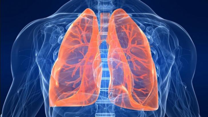 cancerul pulmonar ultima faza hpv treatment toronto