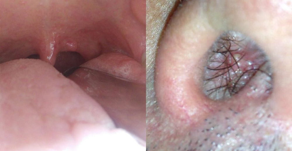 papilloma palato como se manifiesta el papiloma en la boca