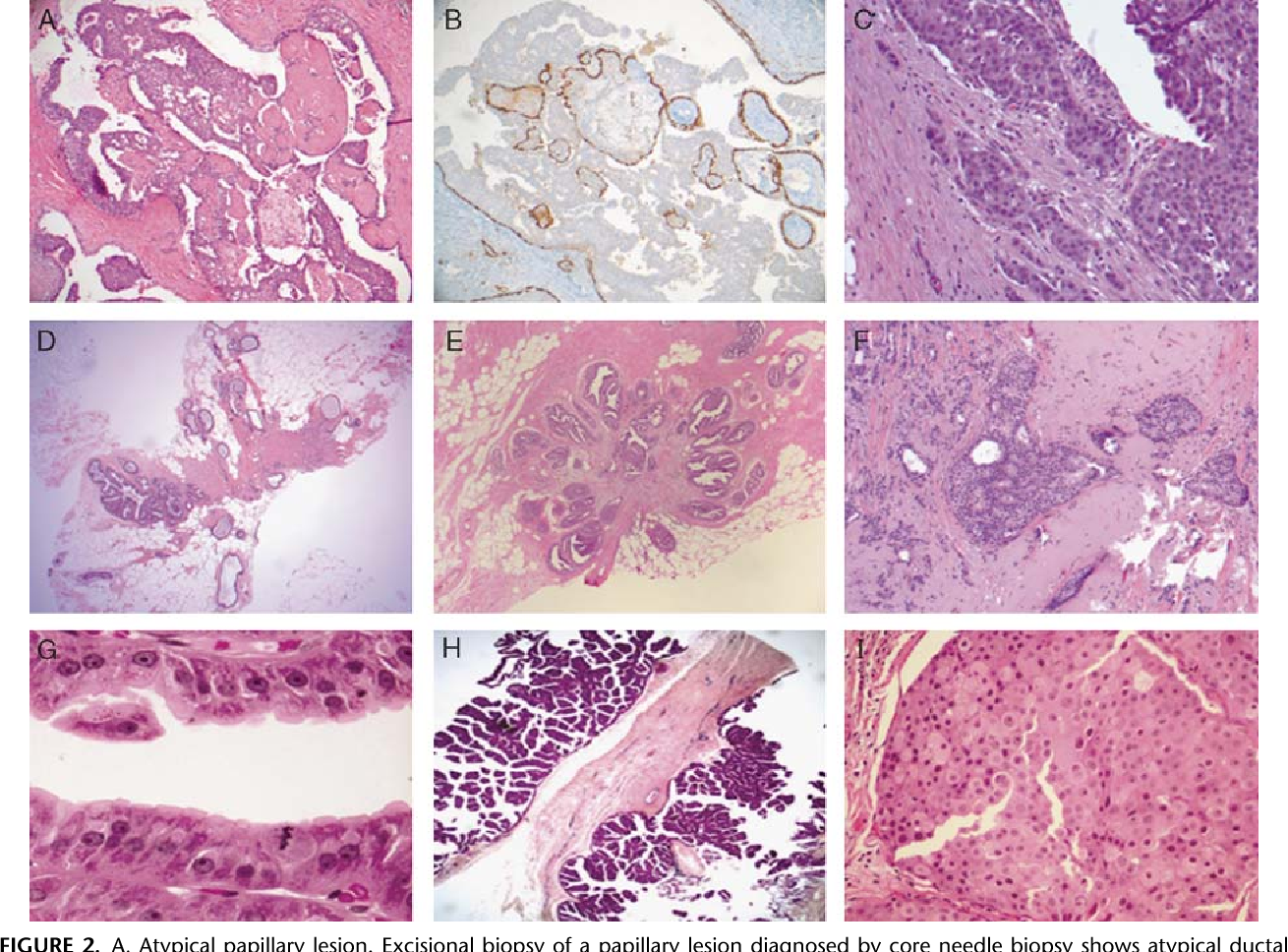 papillary lesion with atypical ductal hyperplasia parazitii toate-s la fel mp3