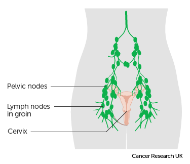 cervical cancer and hysterectomy