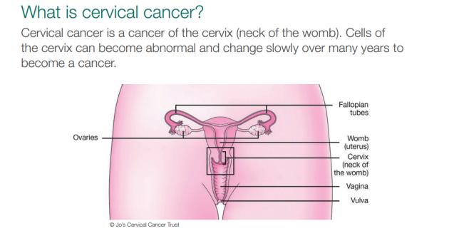 cervical cancer for virgins papiloma no utero