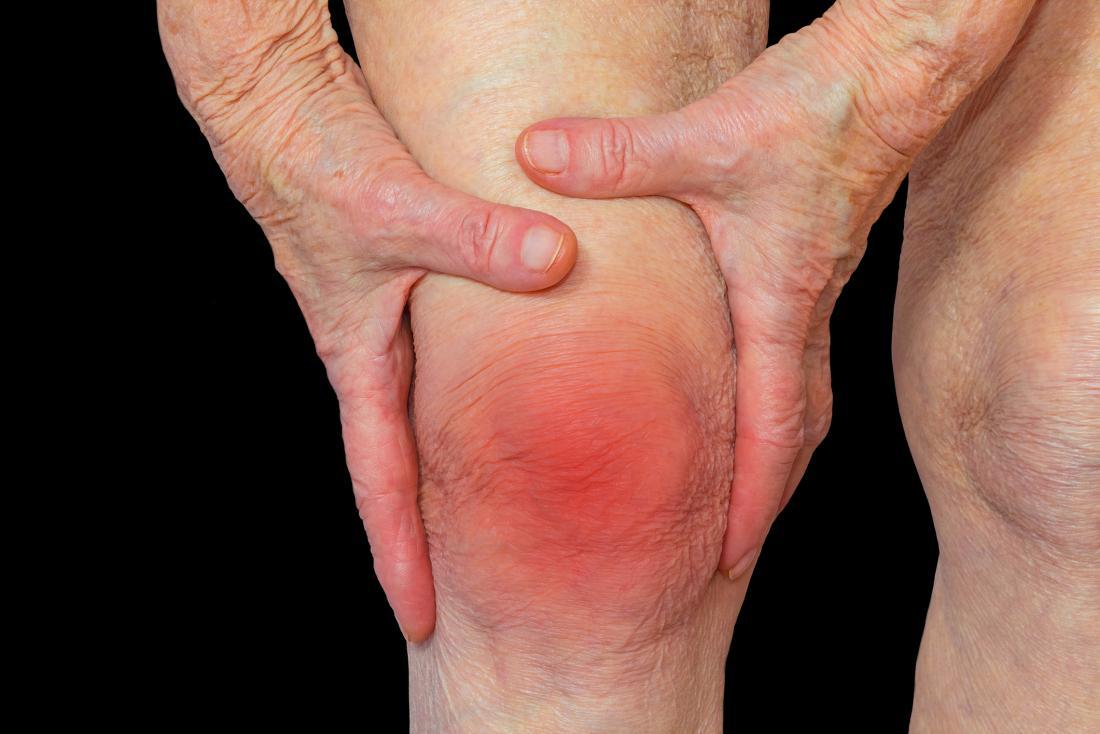 Vindecarea de bursită la genunchi