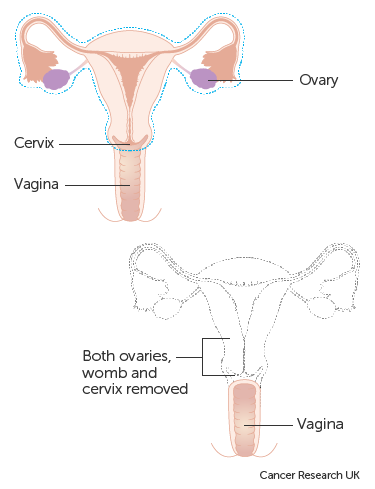 cervical cancer with hysterectomy