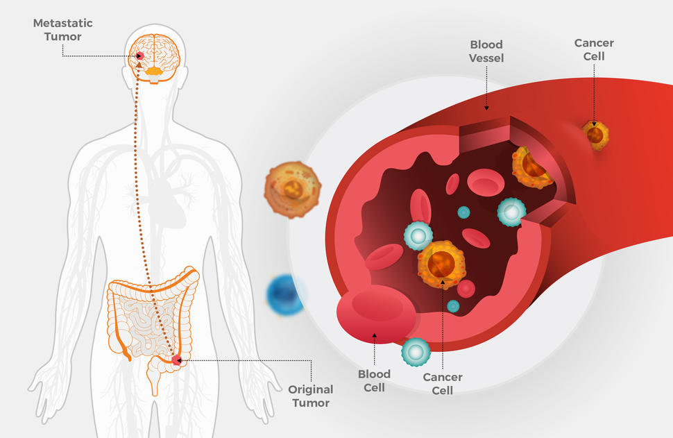 colorectal cancer with metastasis