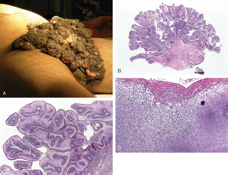 condyloma acuminata growth detoxifierea organismului in timpul sarcinii