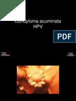 vierme plat papilloma breast lesion
