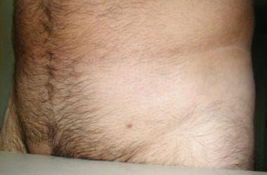 cancer cerebral tratamiento natural mambo parazitii