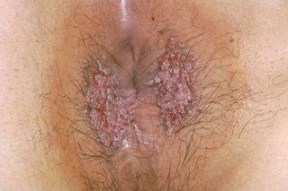 Virusul papilloma uman (HPV) - Sănătatea sexuală -