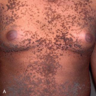 Ginecologie MGVI LR