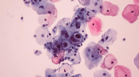 Infecții HPV - contagiune, frecvență, riscuri