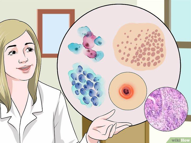 Test Papanicolau anormal. Când semnalizează cancer uterin?