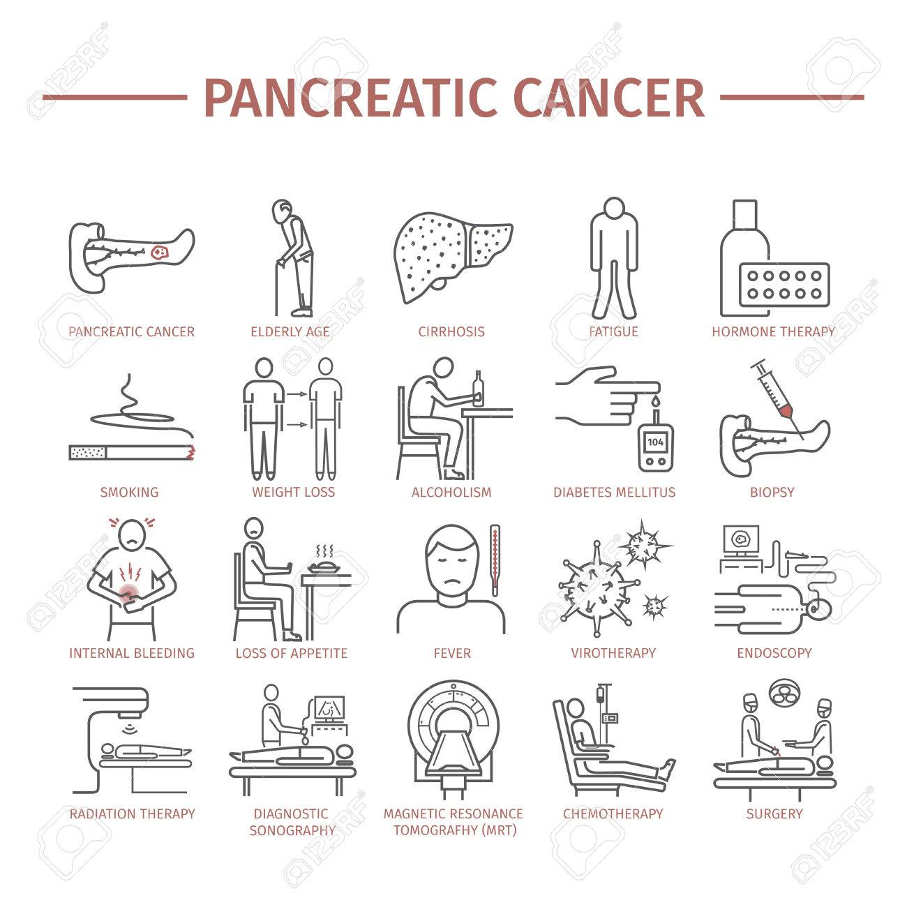 cauze cancer de pancreas