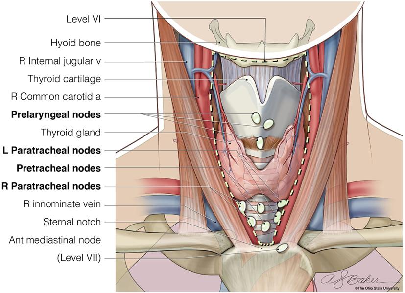 papillary thyroid carcinoma jugular esame papilloma virus nelluomo