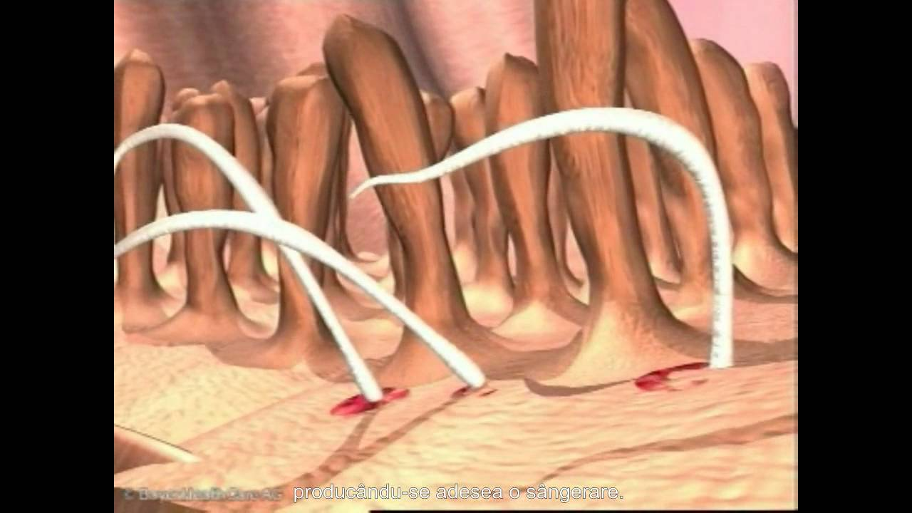 Paraziti intestinali transmisi omului de catre animale - primariabeuca.ro