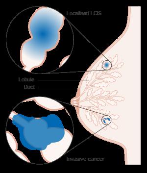papiloma intraductal de mama tratamento papiloma humano causas sintomas tratamiento y prevencion