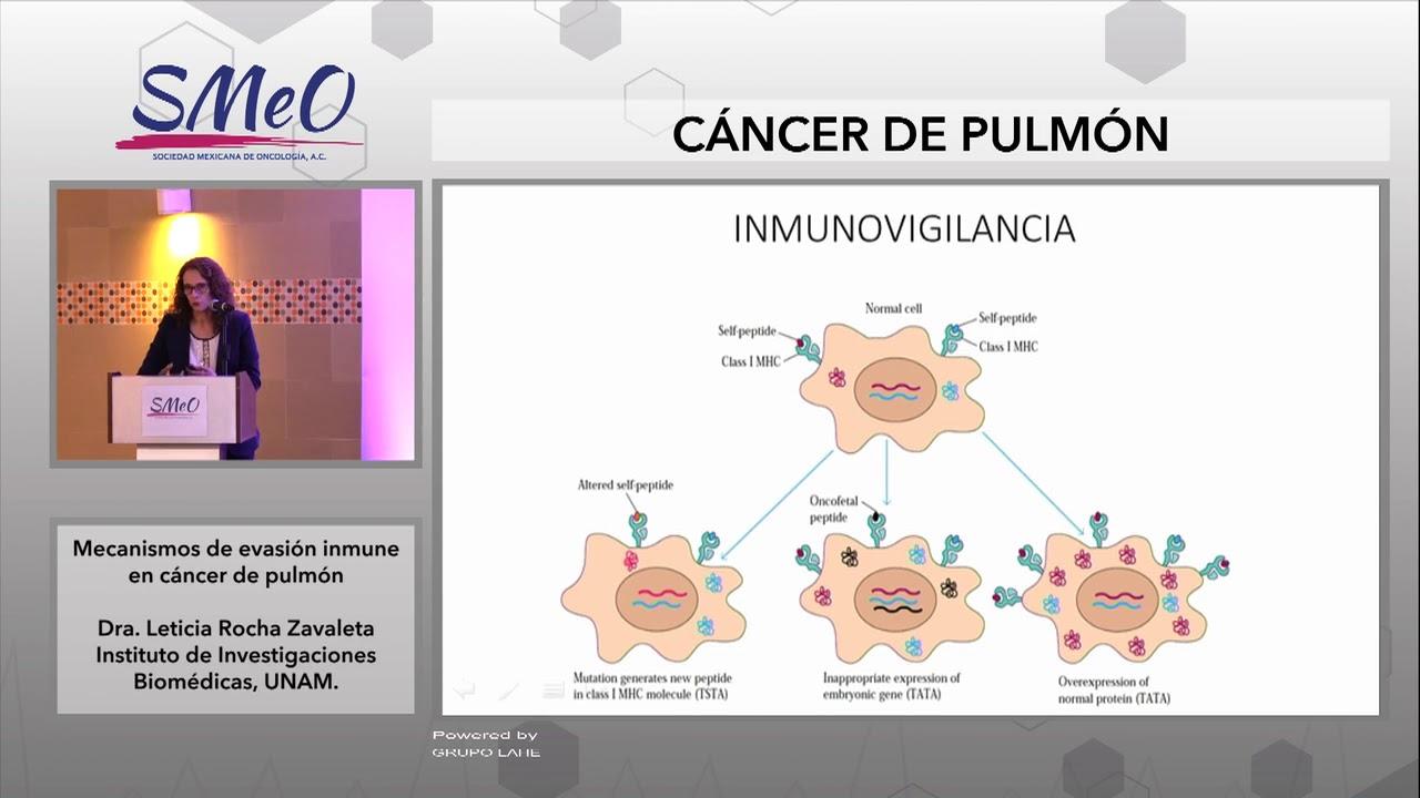 cancer pulmonar cu celule mici speranta de viata