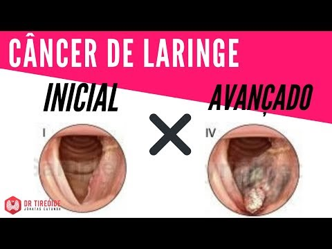 peritoneal cancer definition