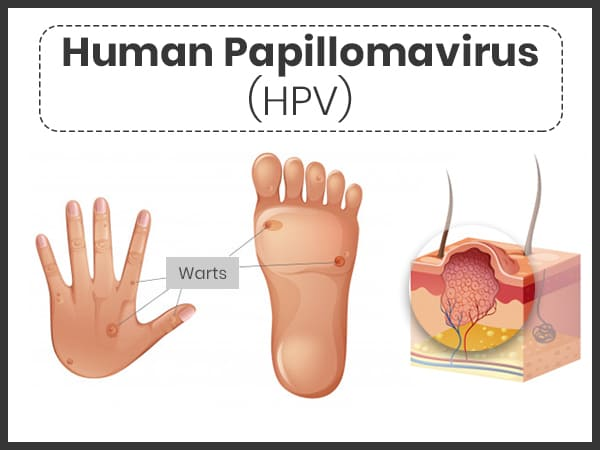 which symptom applies to human papillomavirus (hpv) bad jokes parazitii