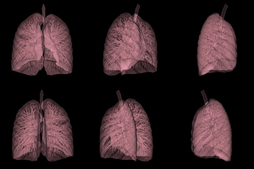 cancerul pulmonar cauze simptome tratament hpv tongue sores