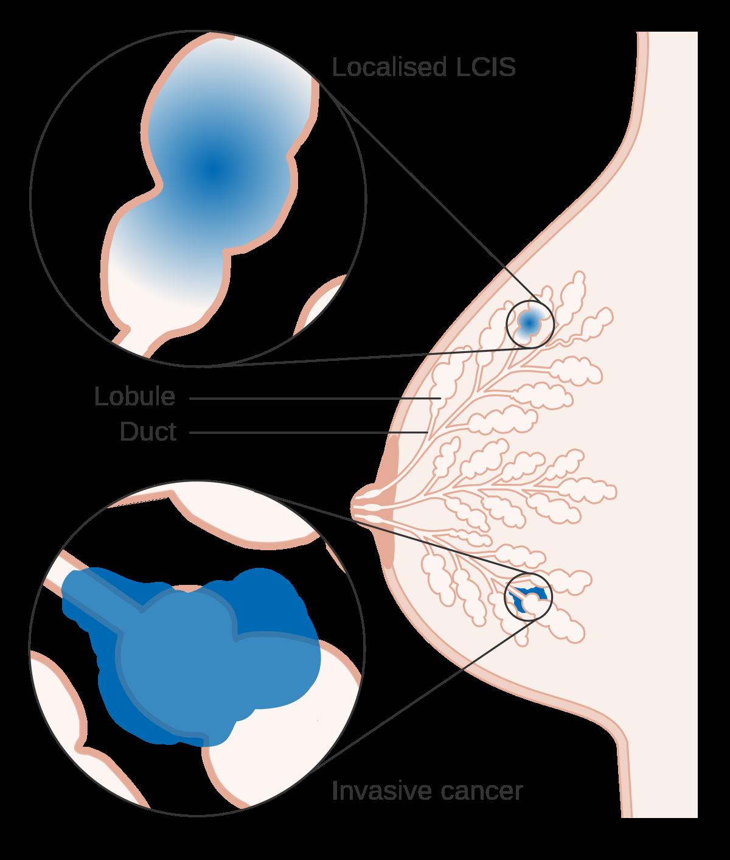 papillary lesion breast icd 10 virus papiloma contagio