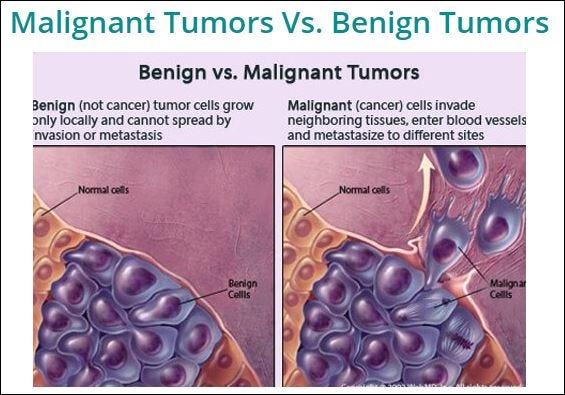 cancer vs benign