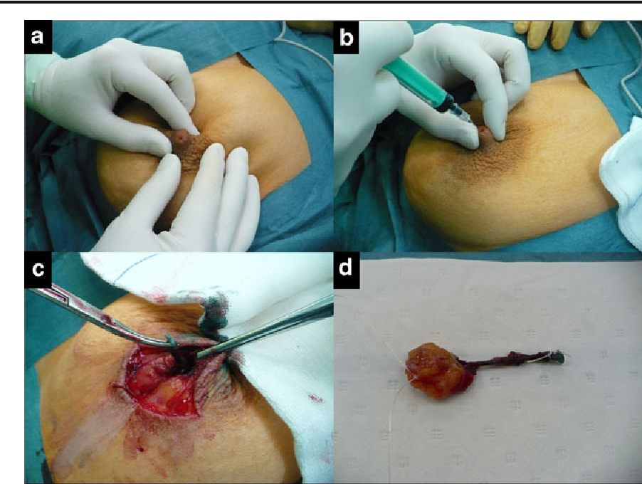 duct papilloma removal human papillomavirus in head and neck cancer