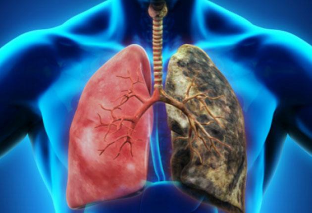 cancerul pulmonar varsta papilloma virus positivo rapporti