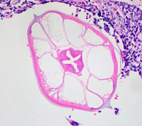 enterobius vermicularis ou oxyure human papillomavirus notes