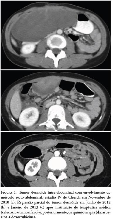cancer parede abdominal