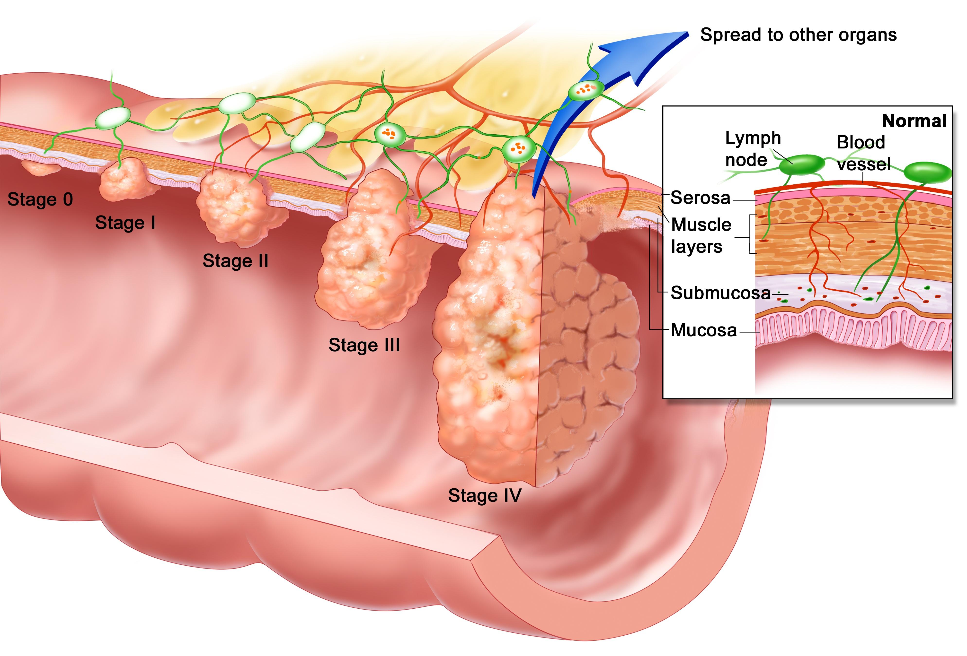 cancer ficat operatie beraria h parazitii