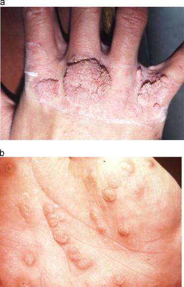 a papilloma is a benign superficial wart like growth on epithelial tissue cancer de pancreas sintomas finais