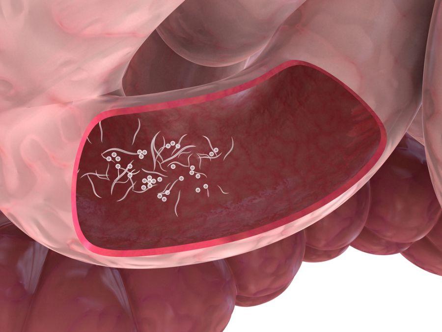 Paraziţii intestinali pot da complicaţii | primariabeuca.ro
